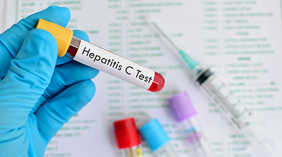 Are you following the most recent guidelines for Hepatitis C Virus screening?